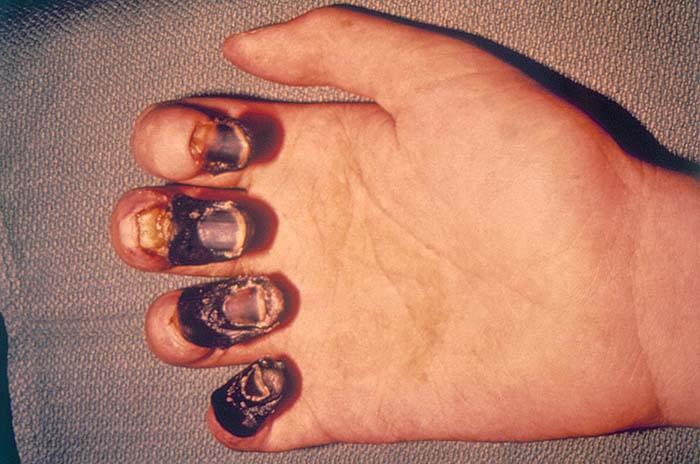 Акральная гангрена захватывает пальцы жертвы бубонной чумы. Эпидемия