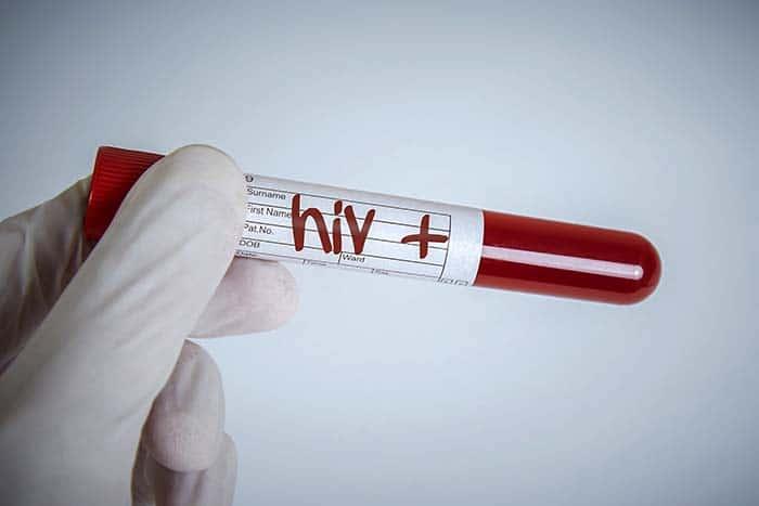 более 34 миллионов человек заражены ВИЧ эпидемия