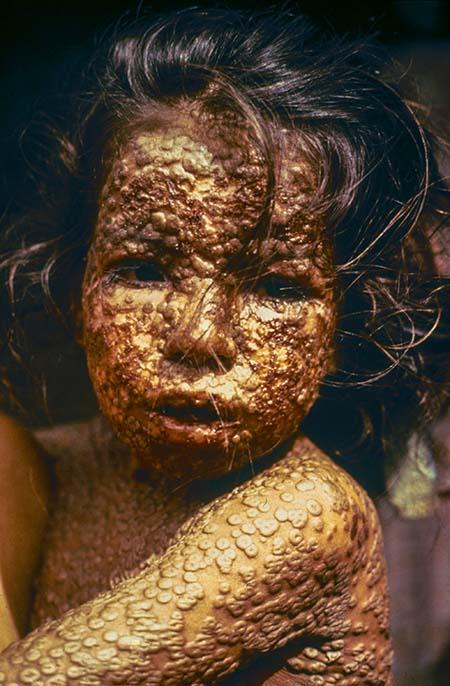 Эта девочка в Бангладеш была заражена оспой в 1973 году. Эпидемия