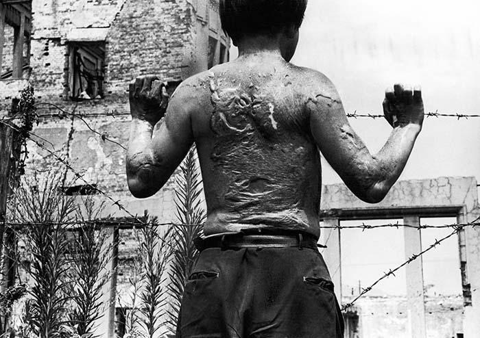 Торс мальчика после ядерного взрыва Хиросима Нагасаки